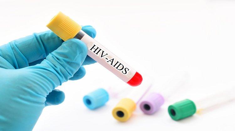 HIV Pozitiflerin Hak İhlalleri Raporu