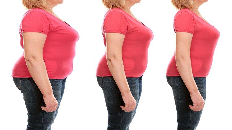 Obezite Akademisi Hayata Geçirildi
