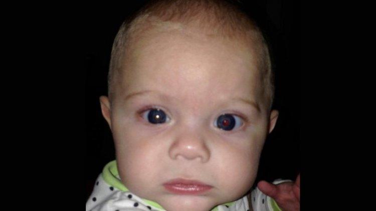 Çektiği Fotoğrafla 4 Aylık Oğlunun Göz Kanseri Olduğunu Öğrendi
