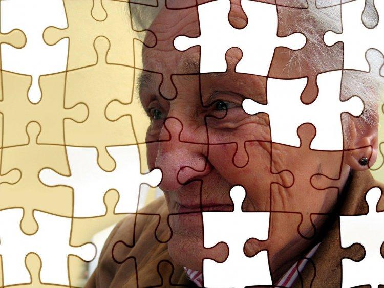 Rusya'da 'Alzheimer'ın Gelişimini Durdurmanın Yöntemi Bulundu