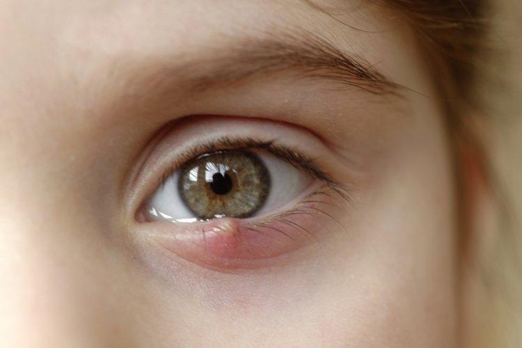 Arpacık Deyip Geçmeyin: Göz Bozukluğuna İşaret Ediyor!