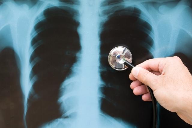Karaciğer Kanserinde Yeni Tedaviler