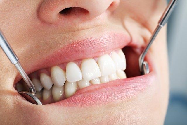 Diyabet; Diş Ve Dişeti Sağlığını Bozuyor
