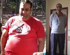 Tüp Mide Ameliyatı Sonrasında 70 Kilo Verdi