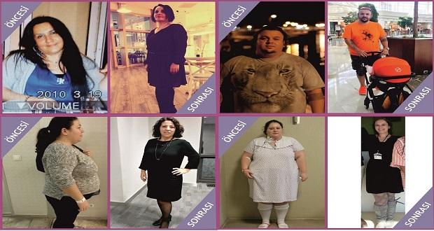 Ameliyatla Zayıflayanlar Obezite Etkinliğinde Buluştu
