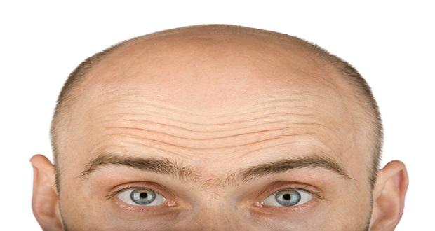 Saç Ekimi'nde Yeni Yöntem: Long Hair Fue