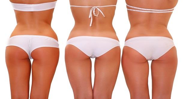 5 Maddede Liposuction İle İlgili Bilmeniz Gerekenler